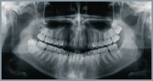 Ortopan